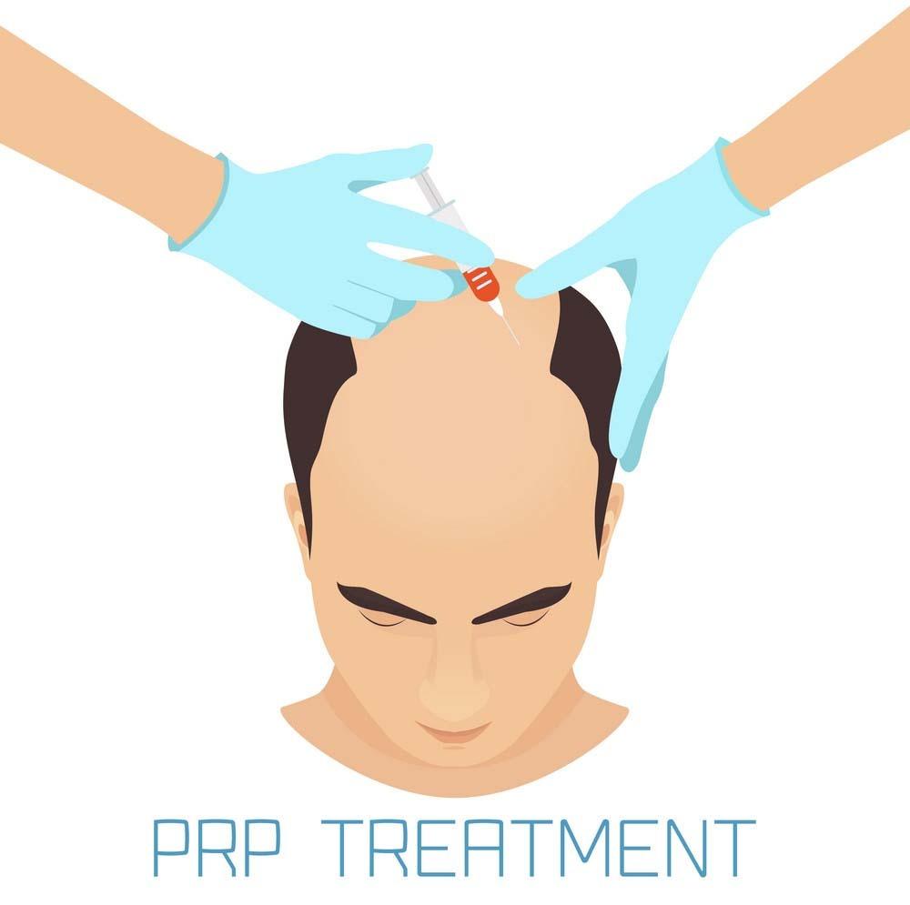 حقن البلازما لعملية زراعة الشعر